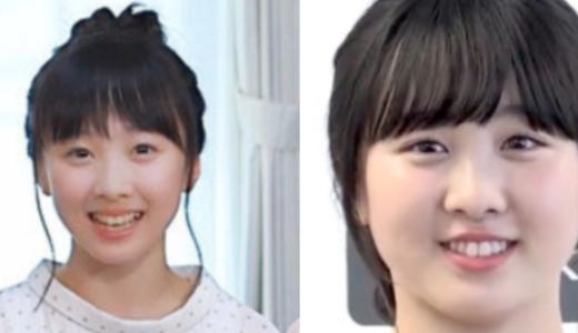【2020】本田望結がふっくらし太った?現在の画像と子役時代を比較!【モニタリング】