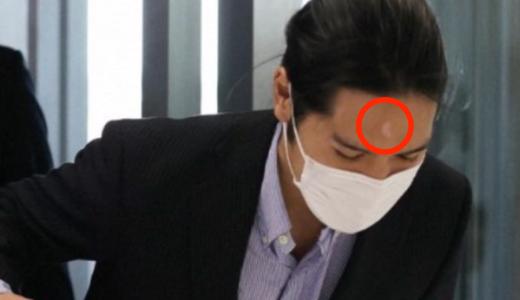 小室圭のおでこの傷は整形?たんこぶの原因はなぜ?との声多数!